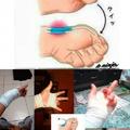 How to break your tendon