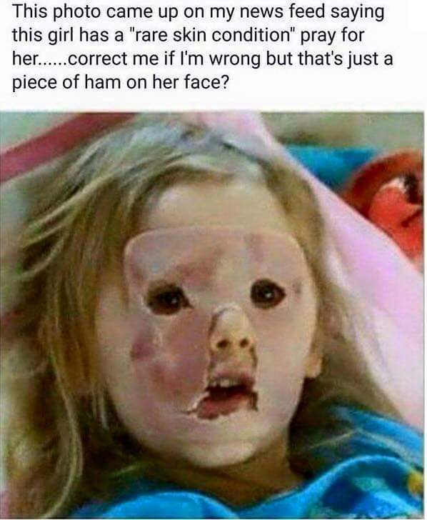 Dat skin condition - meme