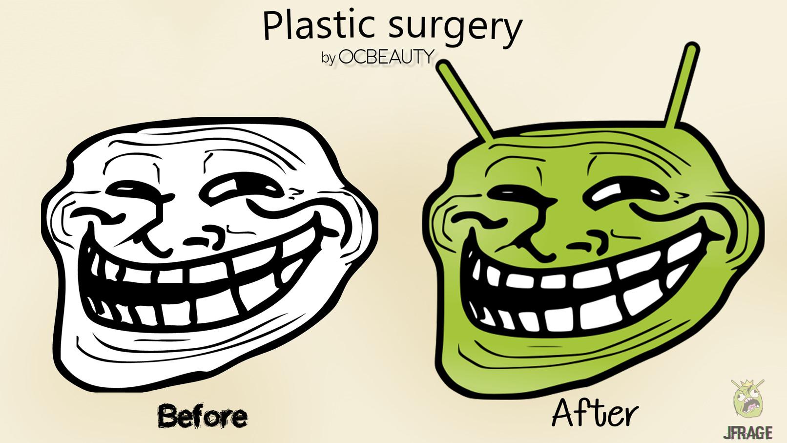 Would you do Plastic Surj138ery? - meme