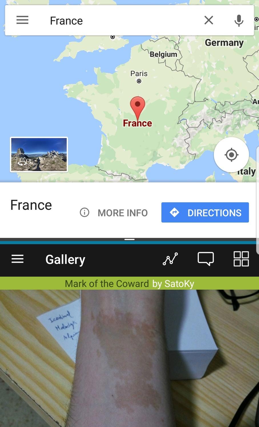 France Vs. Birthmark - meme