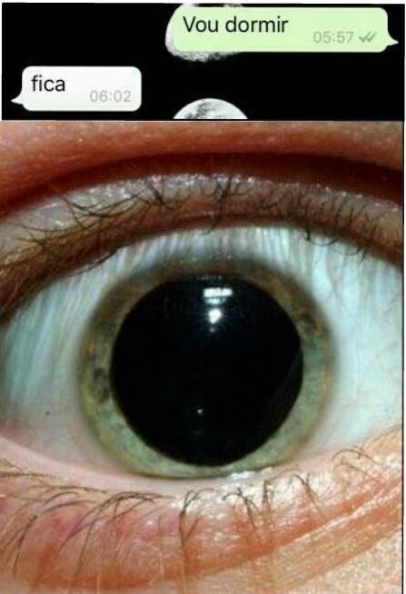 O que faz sua pupila dilata? - meme