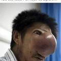 Viole nasale